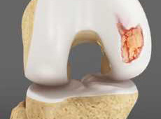 Articular Cartilage Repair