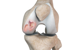 Chondral (Articular Cartilage Defects)