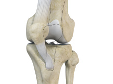 Patella Instability Surgery