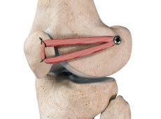Patellofemoral Knee Replacement